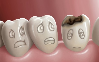 sobre la caries dental
